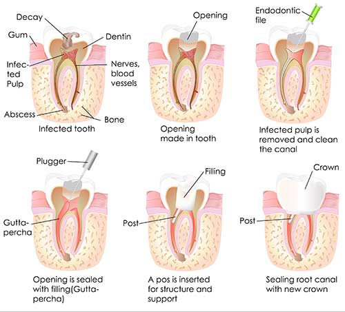 Root Canal Description