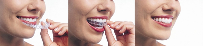 Invisalign in West Hempstead