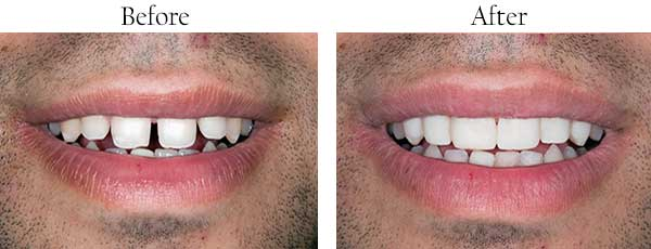 Franklin Square Before and After Dental Implants