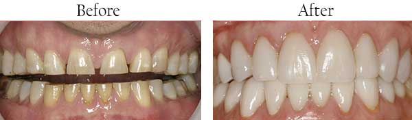 West Hempstead Before and After Invisalign