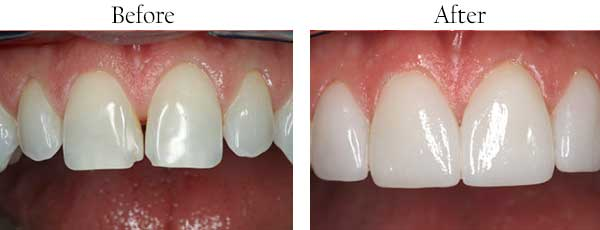 Garden City Before and After Braces
